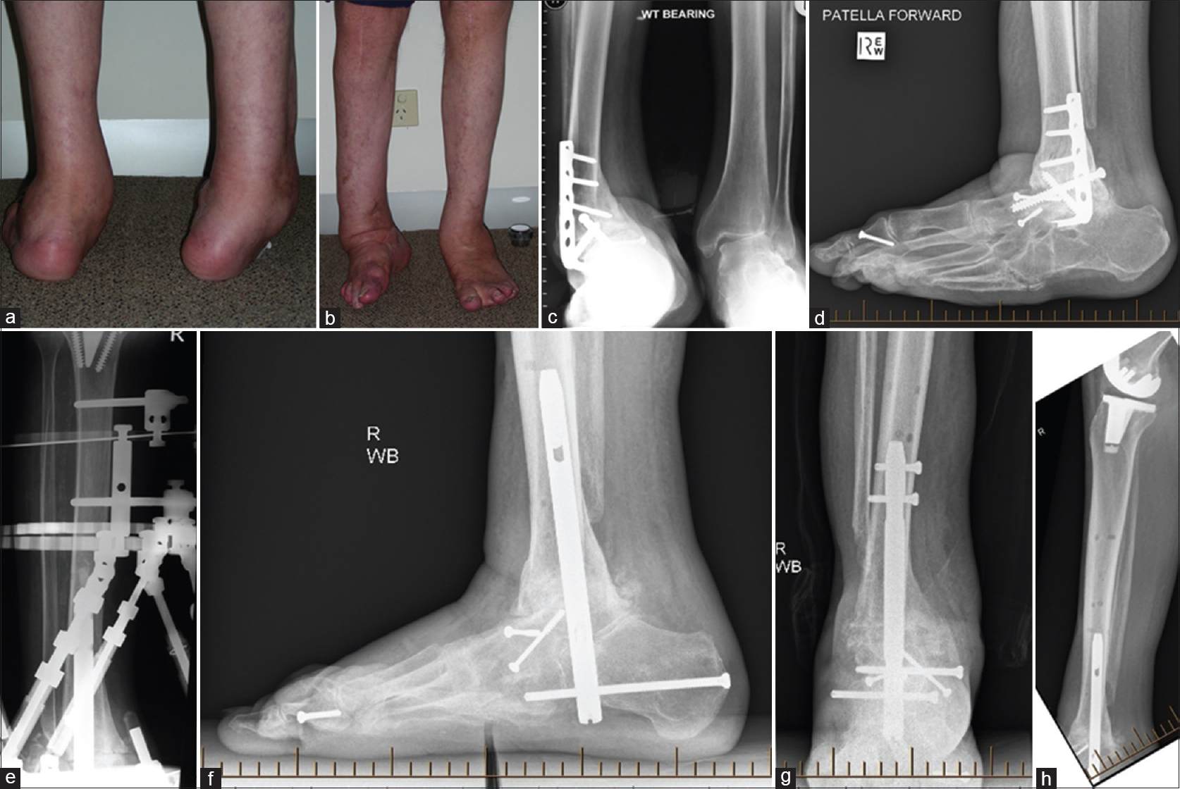Fixator Assisted Nailing For Revision Ankle Fusion With Deformity