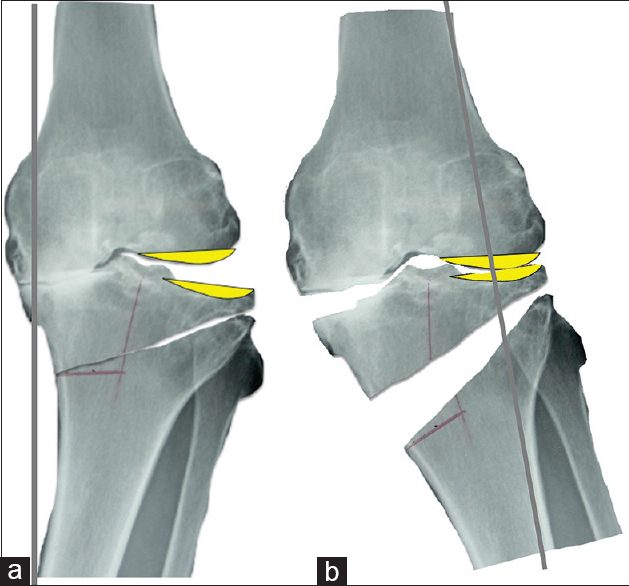 Controversy of high tibial osteotomy Teramoto T - J Limb Lengthen ...