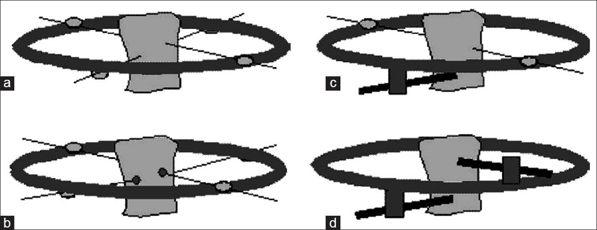 Figure 2: Wire and pin placement configurations