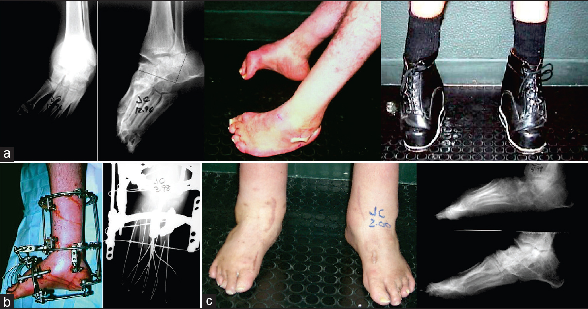 Figure 25: (a) Bilateral arthrogrypotic feet with cavo-equino-adductus in a 42 year old. (b) Application of a constrained Ilizarov frame with V osteotomy of calcaneum. (c) Radiograph and clinical image at 2 year follow-up