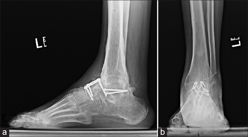 Talar Body Fracture Nonunion And Osteonecrosis With Adjacent