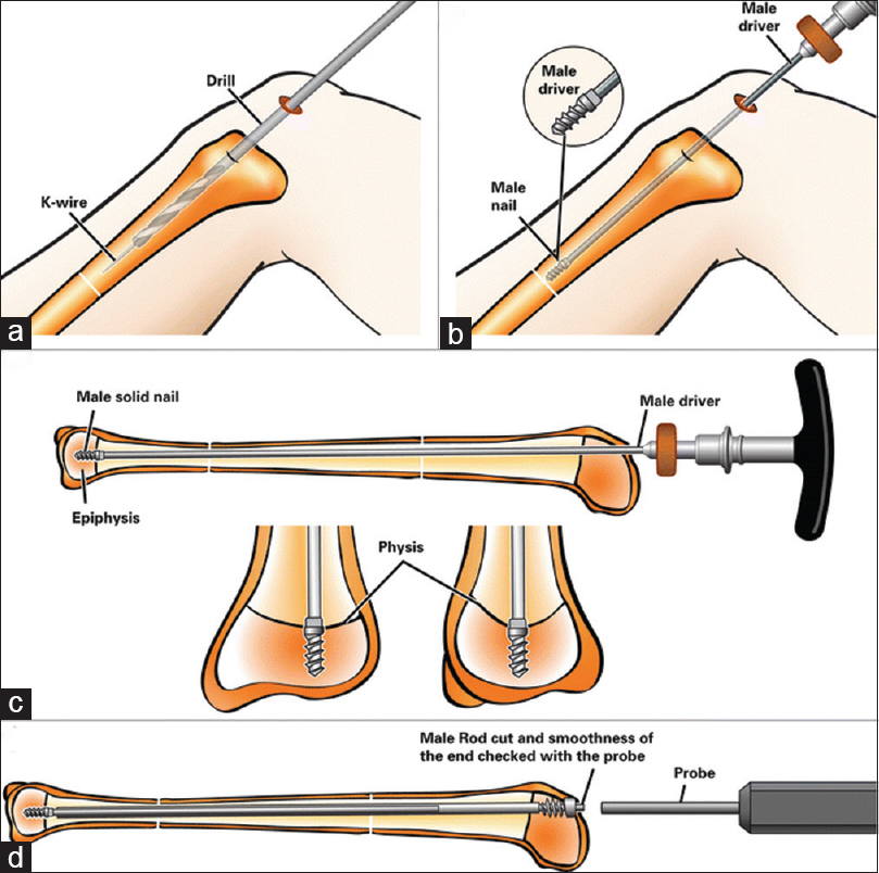Use of the Fassier-Duval telescopic rod for the management