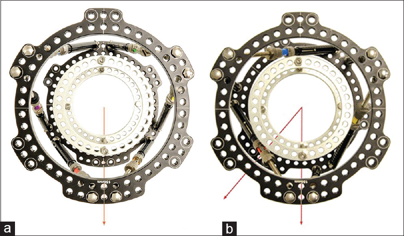 A comparison of deformity correction capabilities in hexapod frame ...