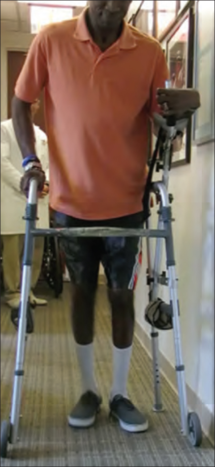 Figure 3: The photo demonstrates the patient at 1 year follow-up after bilateral correction of the deformities. The patient was able to ambulate with a walker