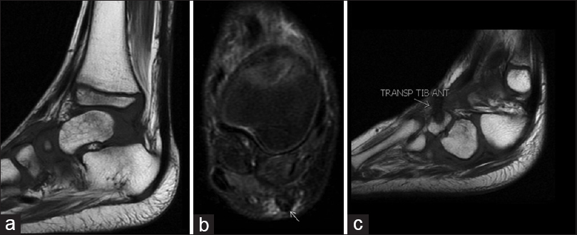 Figure 4: Follow up after 6 weeks of Achilles tenotomy − sagittal plane T1 (a) and axial FSE T2 fat sat (b) the tendon is continuous with discrete peritendinous edema Achilles tendon is healed 8 weeks after surgery. Transposition of the anterior tibial tendon (c) fixed in the lateral third cuneiform