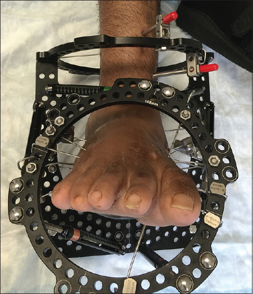 Figure 3: This midfoot deformity correction frame is categorized as a foot frame and is in the 3+ ring group
