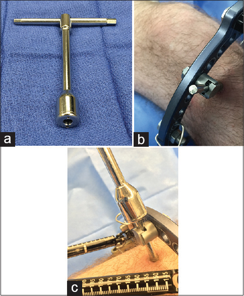 Figure 5: (a) The excalibur half pin extractor from orthofix can provide the torque needed to remove hydroxyapatite-coated pins after the pins have been trimmed (b) This half pin has been cut with a Harrington rod bolt cutter leaving a sharp edge with no way to grip it (c) The extractor is seen removing the cut pin with ease