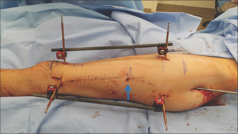 Figure 1: Fixator assisted nailing antegrade femur technique to correct two planes of deformity before intramedullary reaming and nail insertion. The arrow points to the osteotomy (used with permission)