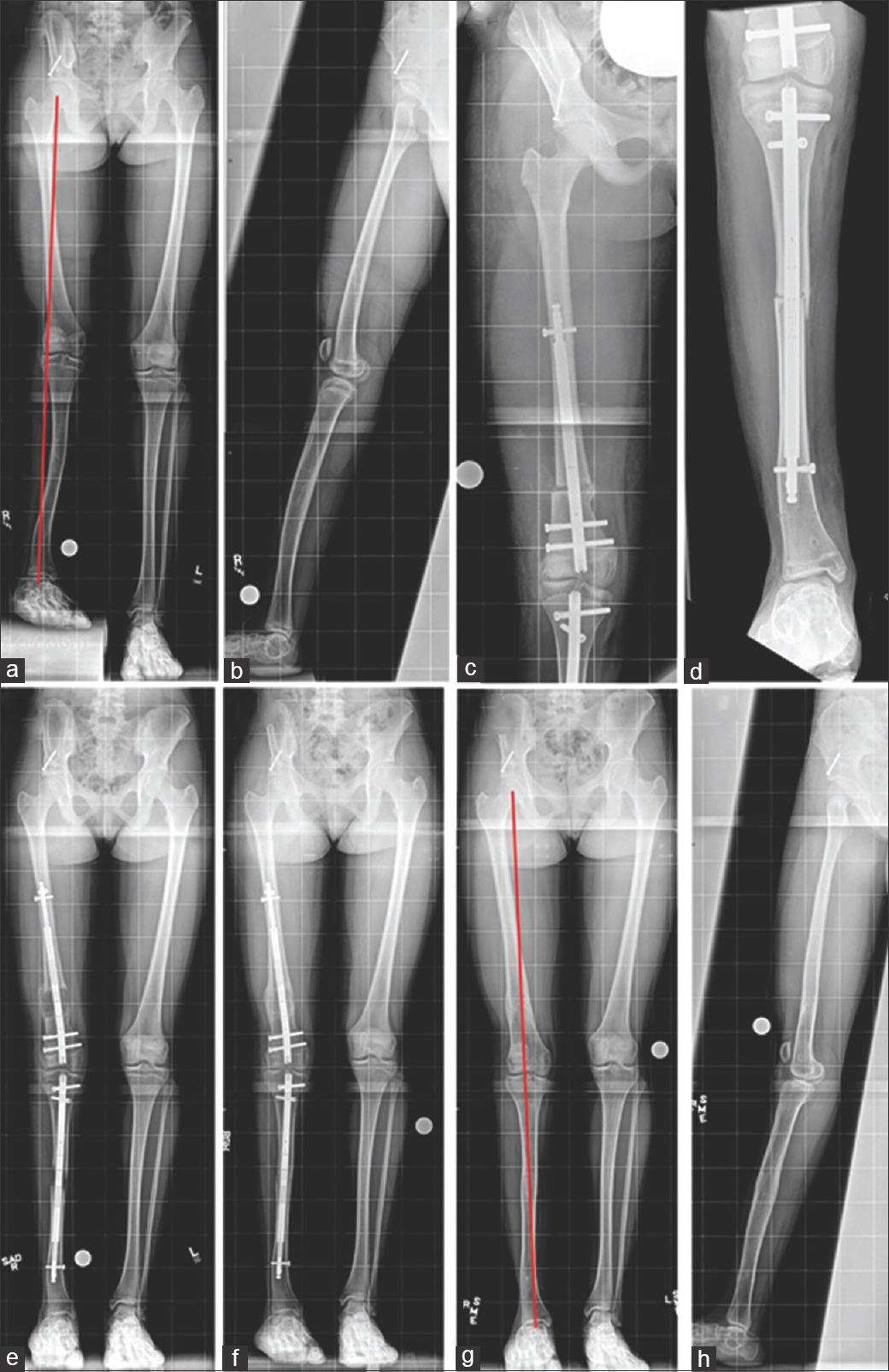 Figure 4: (a-h) 14-year-old female with right-side congenital femoral deficiency/fibular hemimelia (a and b) 3.5 cm femoral discrepancy, 7° femoral valgus, with 6 cm right tibial discrepancy (9° valgus, 3° procurvatum, 10° ITT) (c and d) Immediate postacute deformity correction and PRECICE™ nail insertion femur and tibia. (e) After complete distraction. (f) Consolidation of regenerate. (g and h) After nail removals. Length and limb alignment achieved (used with permission)