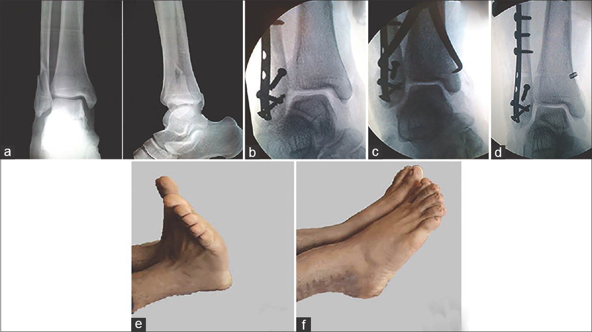 Figure 3: Case example: (a) preoperative anteroposterior and lateral X-rays of 19-year-old male patient show right lateral malleolus fracture with syndesmotic injury. (b) Postoperative anteroposterior view after fracture fixation with still wide syndesmosis. (c) Reduction clamp holding the syndesmosis reduced. (d) Wire and button fixation (the modified technique). (e and f) Range of Motion (ROM) (dorsiflexion and plantarflexion) at the 6<sup>th</sup> month